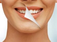 albirea-dintilor